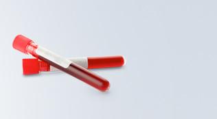 la farmacia puerto realiza pruebas para determinar el grupo sanguineo