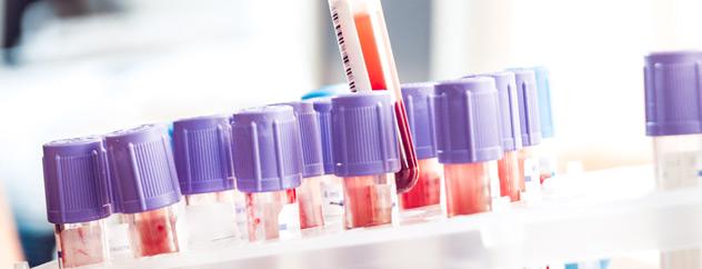 Farmacia Puerto realiza determinación de grupo sanguineo
